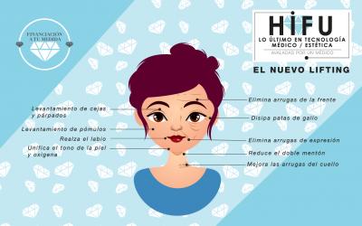 HIFU PRO: El tratamiento estrella esta temporada